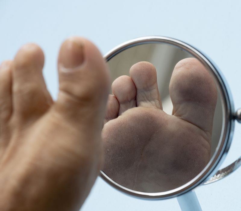Diabetiske fotsår